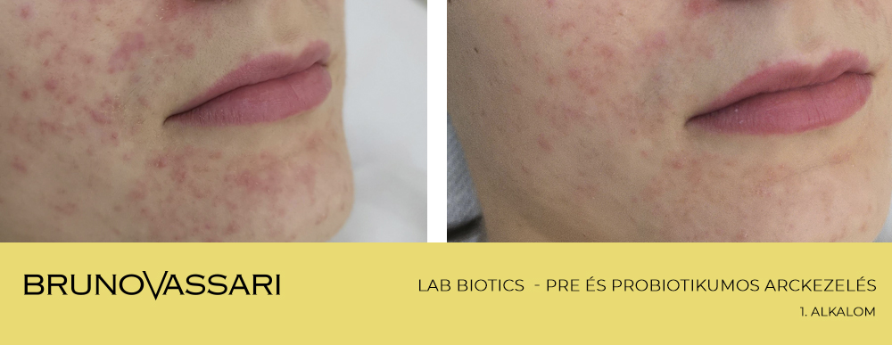 LAB BIOTICS kezelés eredménye - Bruno Vassari Hungary